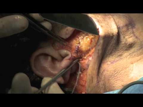 Dispositivi per trattamento di osteochondrosis