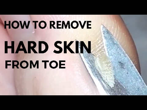 How to remove hard skin from toe.