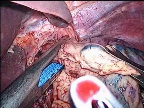 Masáž prostaty ad