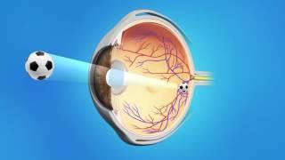 Cataract Surgery with a Monofocal Lens