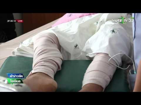 Thrombophlebitis แข็งบนเท้าของเขา