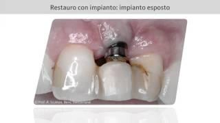 Conservazione ossea dopo estrazione dentale