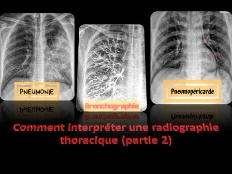Soda commentaires dhypertension