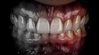 Video 360 Projeto Fotografia Odontológica - Real e Definitiva