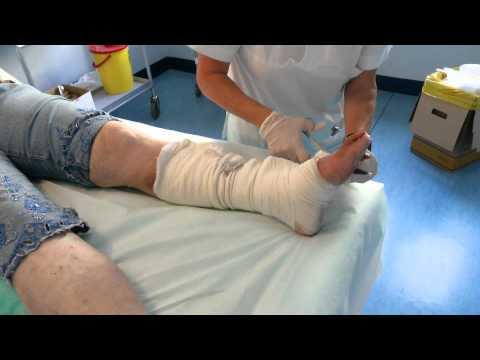Trattamento nazionale di varicosity di vene profonde