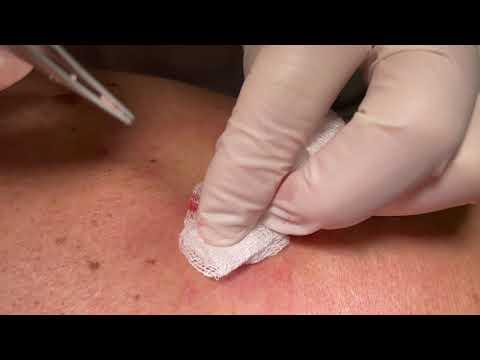 Inversa intim akne Acne inversa