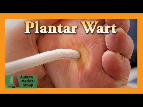 Wart treatment hand