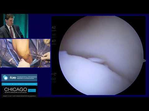 Ízületi gyulladás kezelése hazilag
