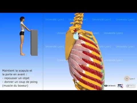 La diastase des muscles