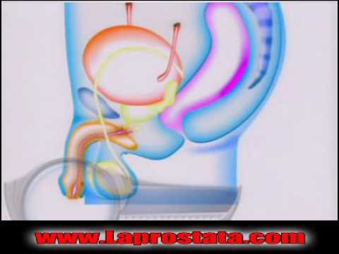 Crioterapia di adenoma prostatico