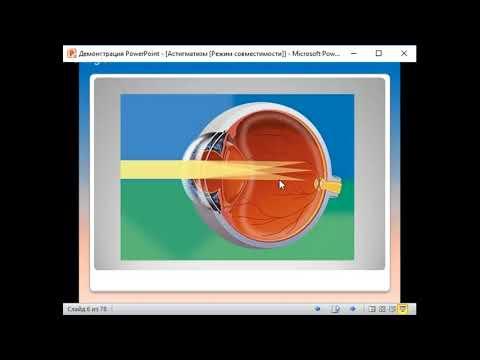 Что такое астигматизм глаз и