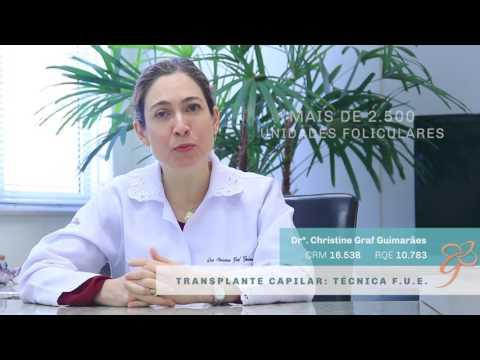 Drª Christine: Técnica FUE - Vídeos | Clínica GrafGuimarães