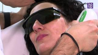 Eliminacion de lentigos o manchas del sol con laser - Dr. Didac Barco