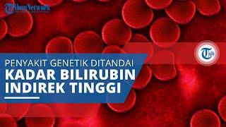 Sindrom Gilbert, Jenis Penyakit Genetik Ditandai Kadar Bilirubin Indirek yang Tinggi dalam Darah