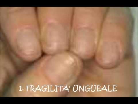 Come prendono lanalisi di un fungo su unghie