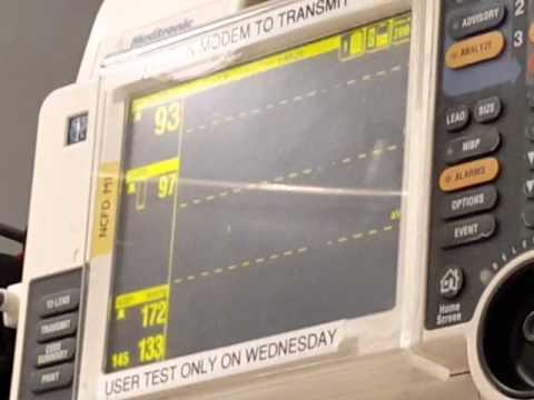 Was Rate von Blutdruck bei Kindern.