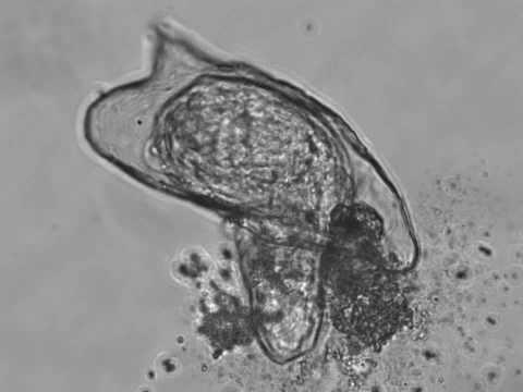 A genitális szemölcsök mikoplazmózisa