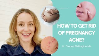 How to get rid of pregnancy acne?
