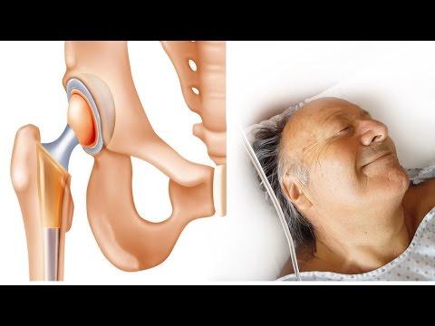 Massaggiare lernia colonna vertebrale toracica