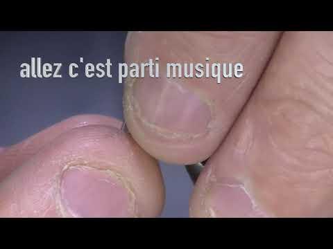 Mouche d'Ornans CDC