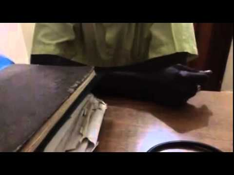 Senfle des pieds après lopération des veines