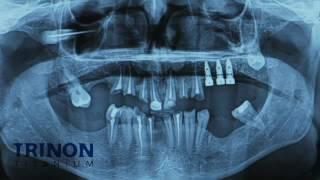 Centre Dental Cise (las imágenes pueden herir la sensibilidad del espectador) - Centre Dental Cise