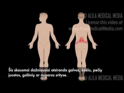 Klizma hemorojus ir prostatos