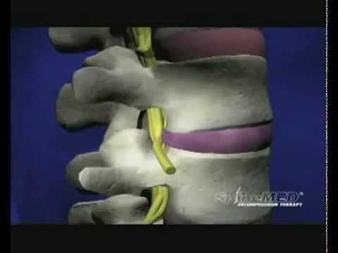 Huśtawka na mięśnie pleców