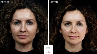 A non-surgical face lift | Explained | Before & After