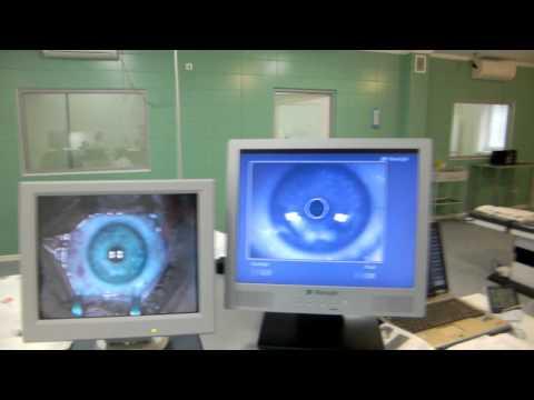 Какие анализы сдавать на операцию лазерную коррекцию зрения