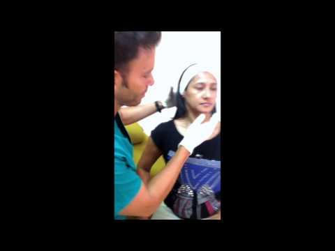 Il dispositivo per sollevamento di faccia