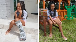 Girl with BROKEN LEG Finally Gets Her HAPPINESS BACK   FamousTubeFamily