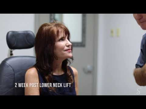 Necklift Recovery