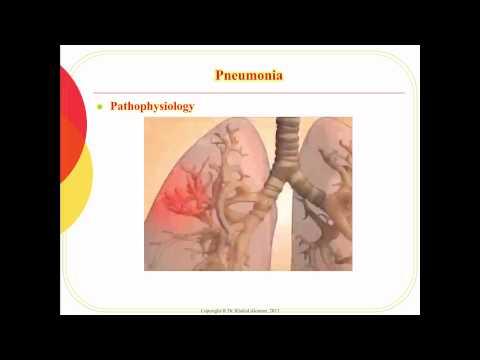 Refacerea cartilajului articulației șoldului