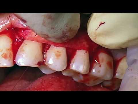 Хирургическое лечение множественных рецессий десны с ТМО. Часть 2