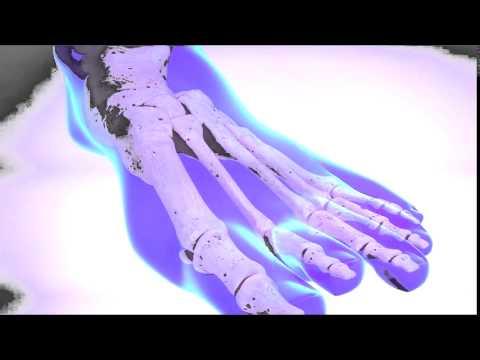 La varicosité le laser de la complication