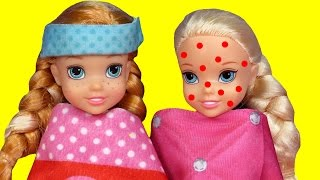Toddler is SICK ! Elsa & Anna - CHICKENPOX - The other PRETENDS  Who's really sick  Doctor Barbie