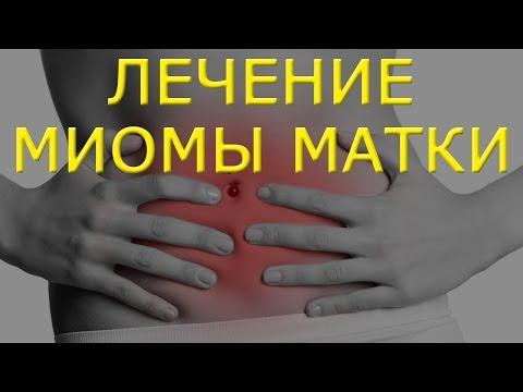 Коды мкб 10 рак предстательной железы