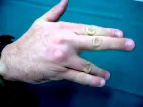 Articulațiile doare ceea ce ajută unguentele