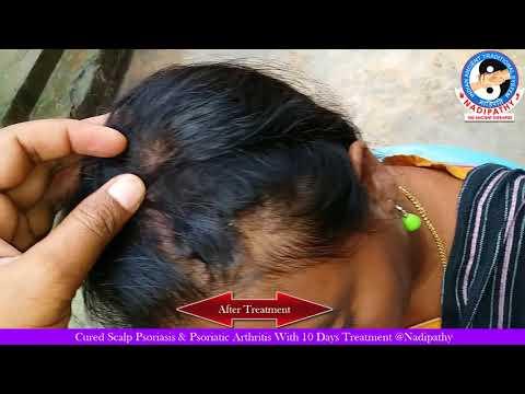 Un fort moyen du psoriasis sur la tête