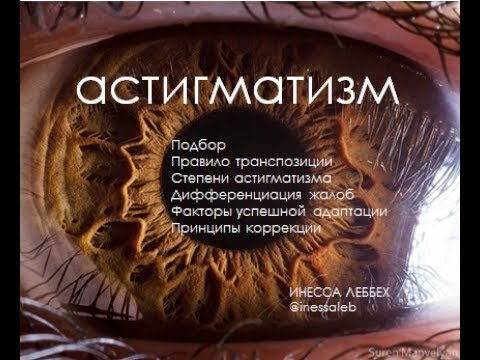 Как прочитать рецепт на очки с астигматизмом