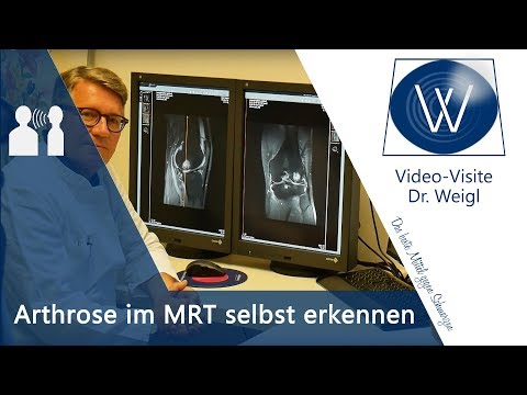 Knee Replacement Rostow am Don Preis