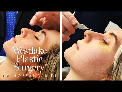 Procedure Video: Go Into The Operating Room For A Nose Job Procedure