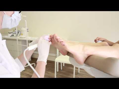 Wie gribok von den Beinen zu entfernen