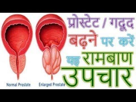 Cancro alla prostata può vivere molto