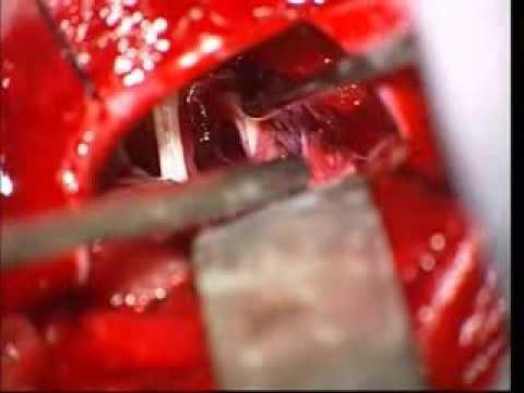 Zabieg Chirurgiczny w Neuralgii Nerwu Trójdzielnego