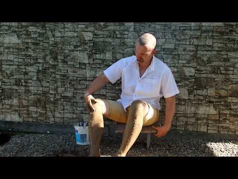 Как я лечил  глиной коленные суставы,и варикоз....