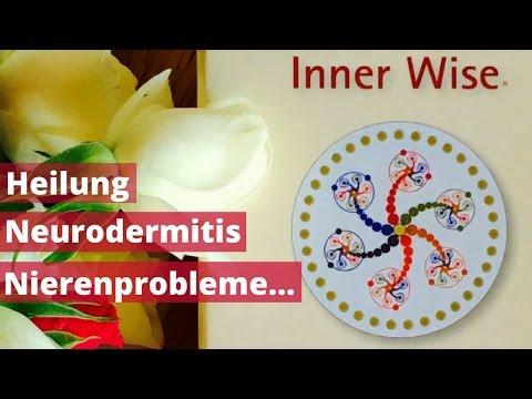 Mikrobnaja das Ekzem bei den Teenagern
