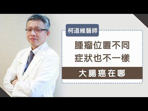大腸癌在哪》腫瘤位置不同、症狀也不一樣- 柯道維醫師
