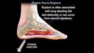 Plantar Fascia Rupture - Everything You Need To Know - Dr. Nabil Ebraheim